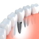 Clínica Dental Roberto H. Manette en Deltamèdic La Ràpita - Implants